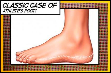 Athletes foot is similar to ringworm and jock itch