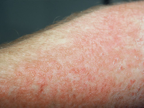 how to stop contact dermatitis and other skin conditions such as jock itch