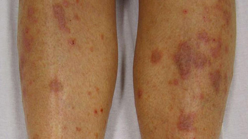 what does lichen planus look like? Skin itchiness and redness, sore itching relief