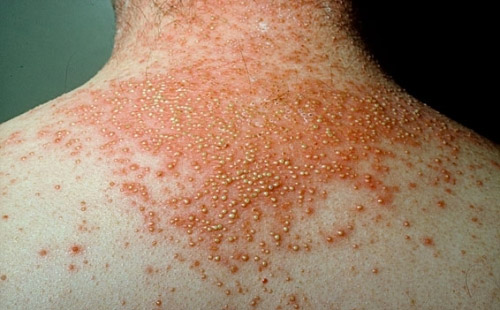 psoriasis is a skin condition similar to jock itch or tinea cruris