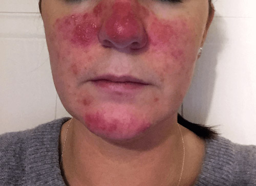 Rosacea is a skin condition similar to jock itch or tinea cruris
