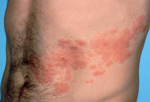 what does shingles look like? Shingles is a skin disease that causes itchiness and redness.